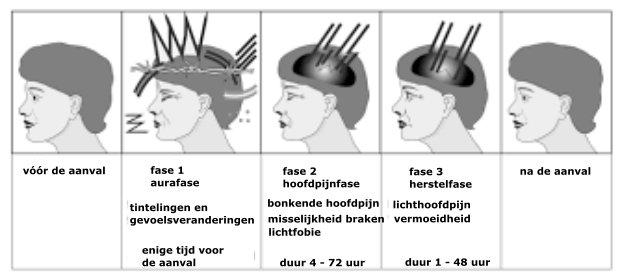 Tips Om Migraine Te Vermijden En Aanvallen Te Verminderen