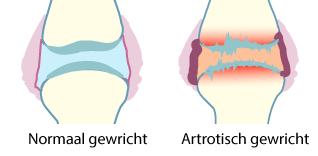 Artrose preventie