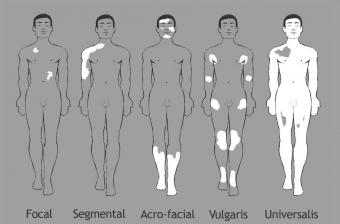 Vitiligo vormen