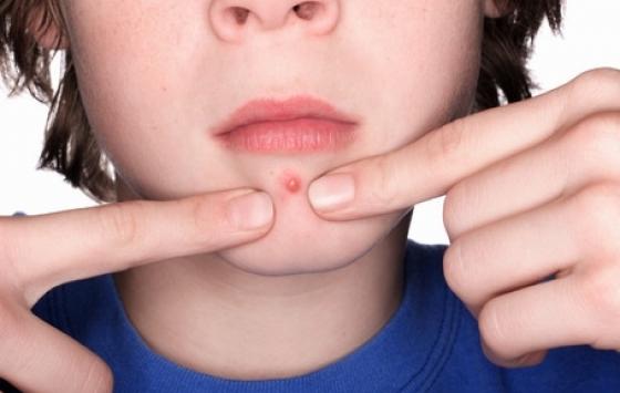 L'acné juvénile