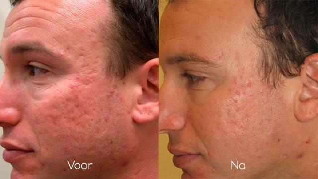 Acné littekens verwijderen