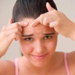 Comment lutter contre l'acné?