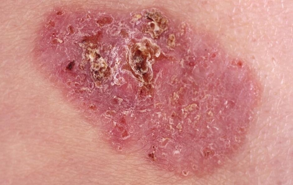 Détecter cancer de la peau