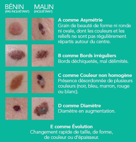 Tumeurs malignes de la peau