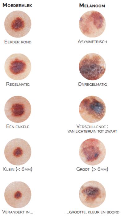 huidkanker symptomen