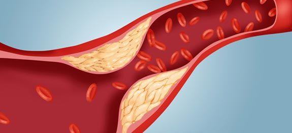 taux de cholestérol