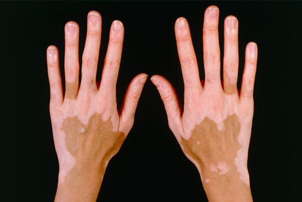 vitiligo traitement